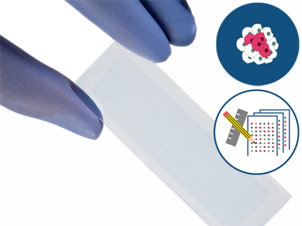 PEPperCHIP® Cancer Neoepitope Microarray