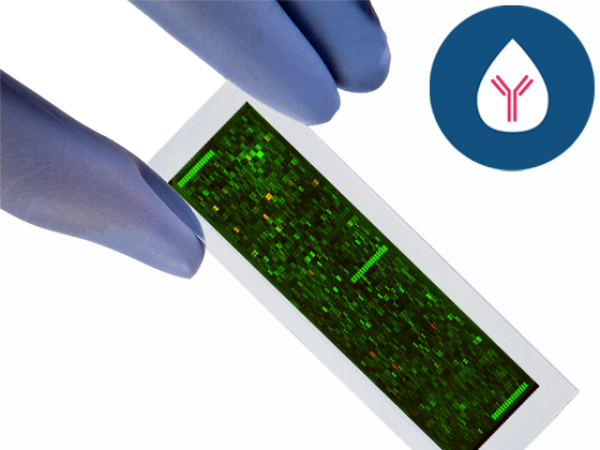 PEPperCHIP® Lupus Microarray