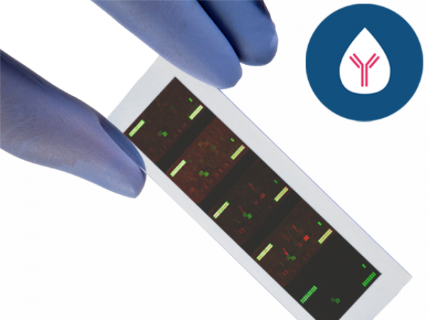 PEPperCHIP® Cyclic Citrullinated Peptide Microarray